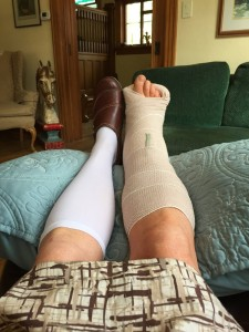 crutches day 1, cast on my leg